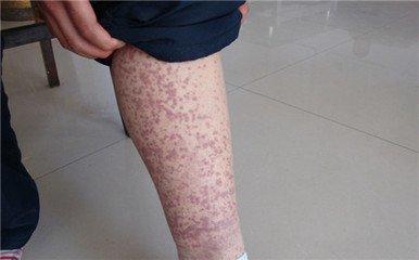 甲醛致紫癜性肾炎